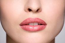 Upper-Lip-Shortening.jpg
