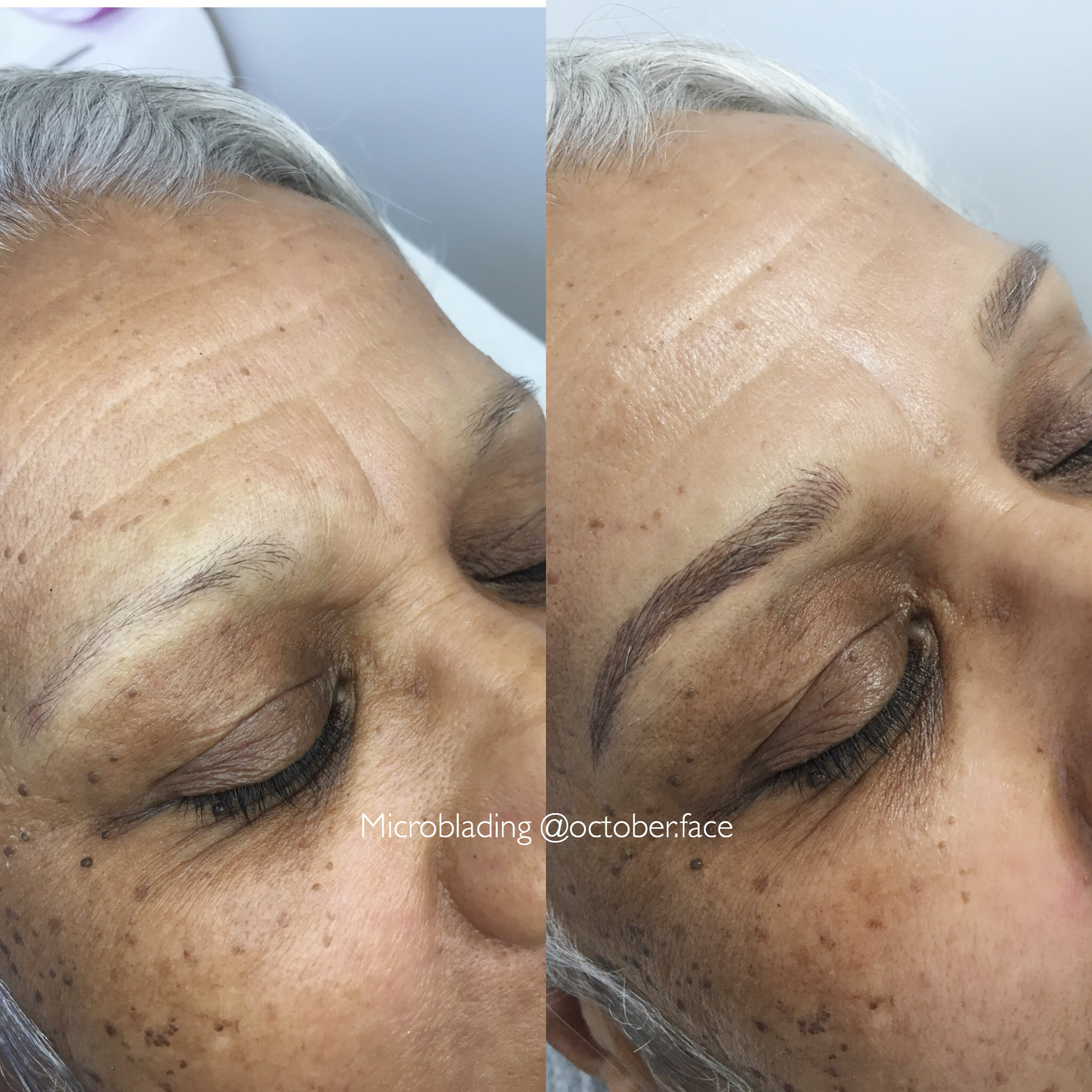 Chemo eyebrow replacement
