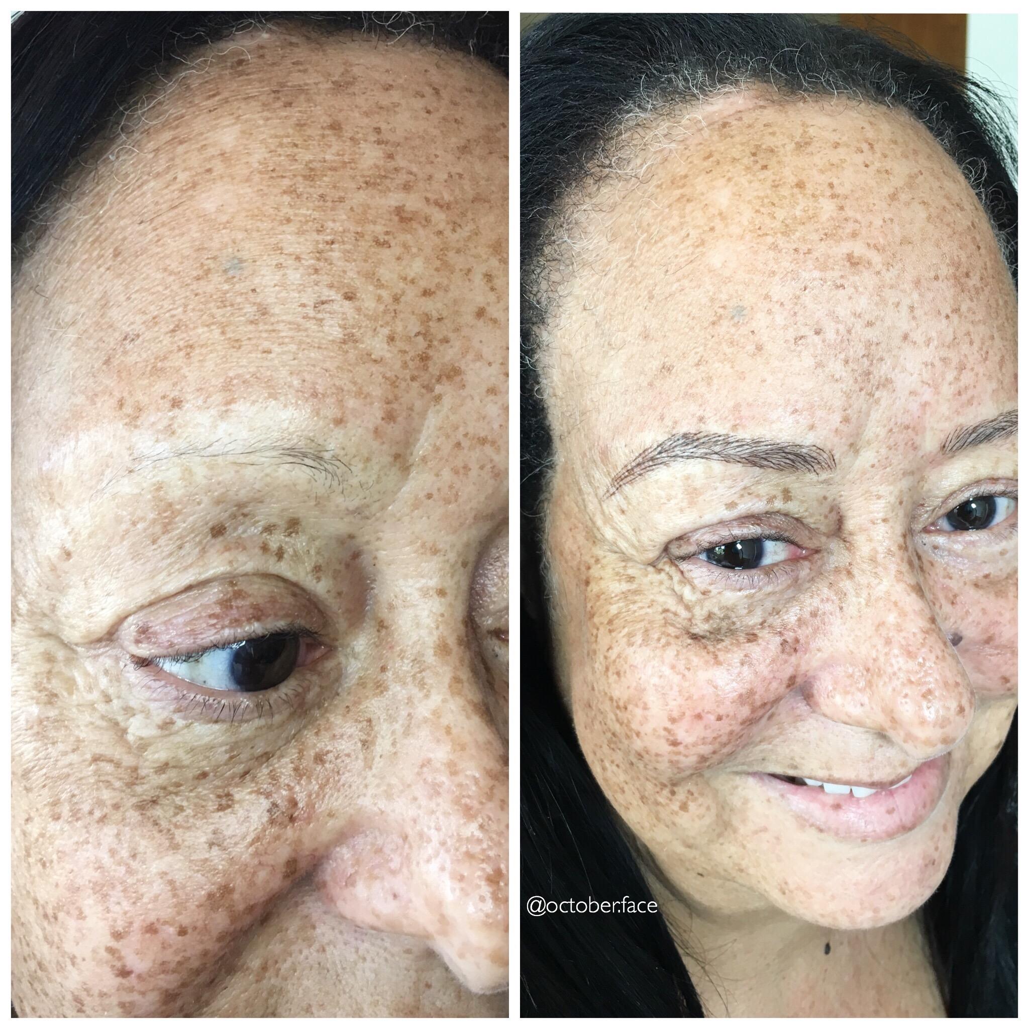 Alopecia Microblading