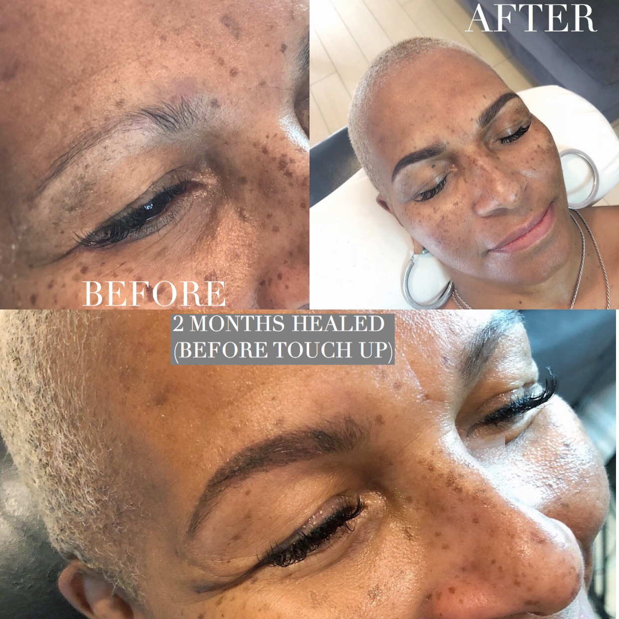 Combo Microblading October Face