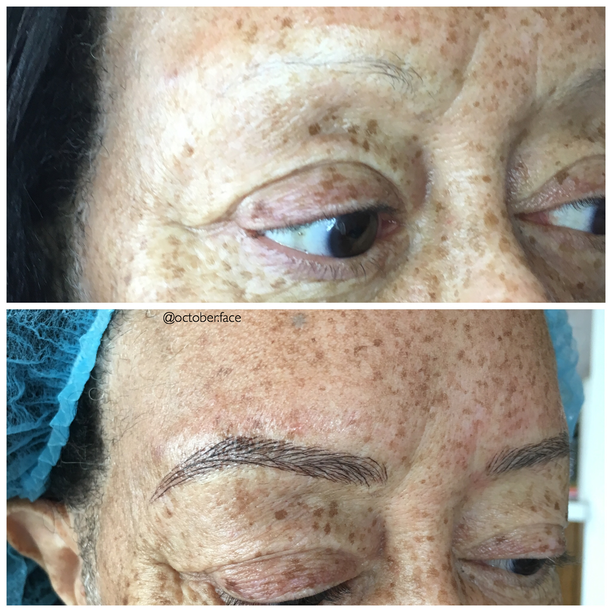 Eyebrow Replacement Los Angeles