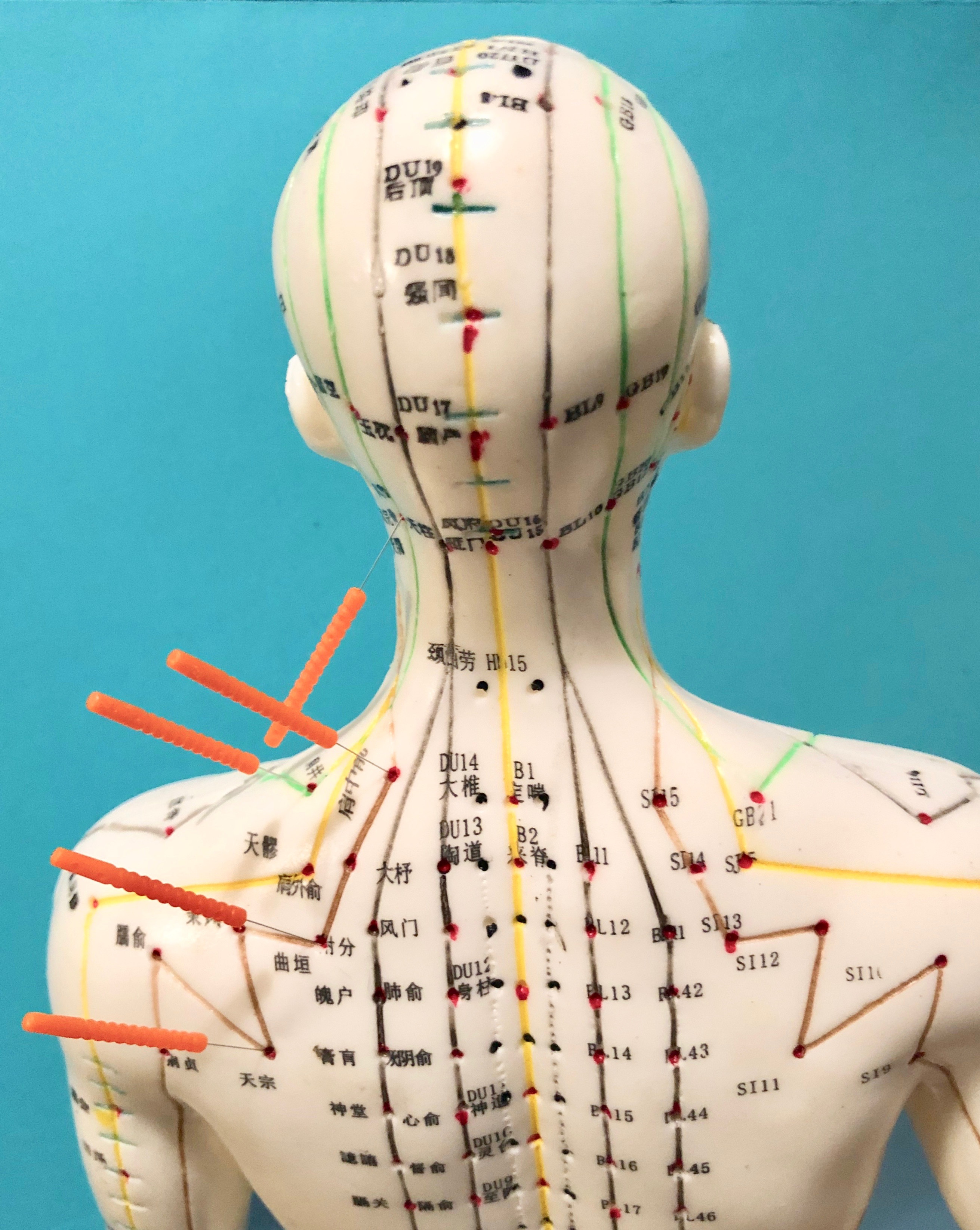 Acupuncture Follow-Up Visit