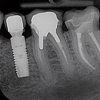 Parodontiste spécialiste pour enfant et adolescent Marseille 13
