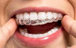 traitement orthodontie enfant marseille 13