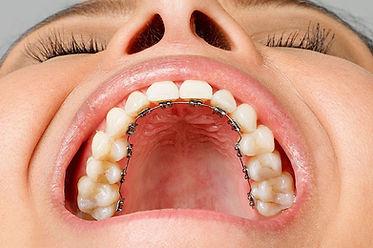hygiene bucco dentaire marseille 13