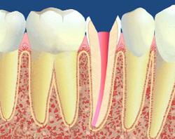 Résumé:Protéger la dent dévitalisée