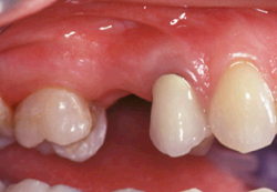 Exemple : bridge de 3 dents
