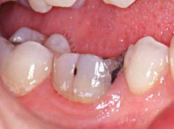 Une dent dévitalisée est fragile
