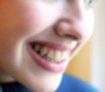 appareil dentaire marseille 13
