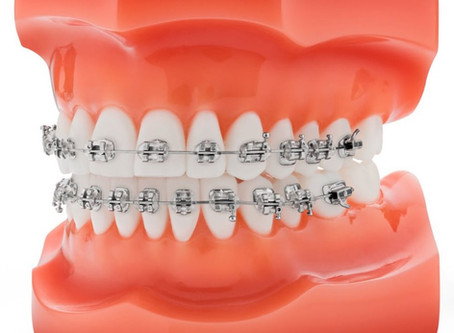 Le point sur l'orthodontie enfant / adulte