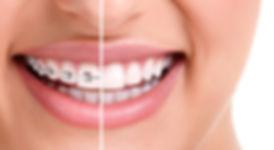 orthodontie orthodontiste orthopédie dento faciale appareils bagues brackets aix en provece pas cher appareils invisibles invisalign