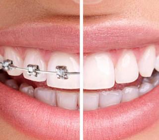 Orthodontie Invisible de l'adulte