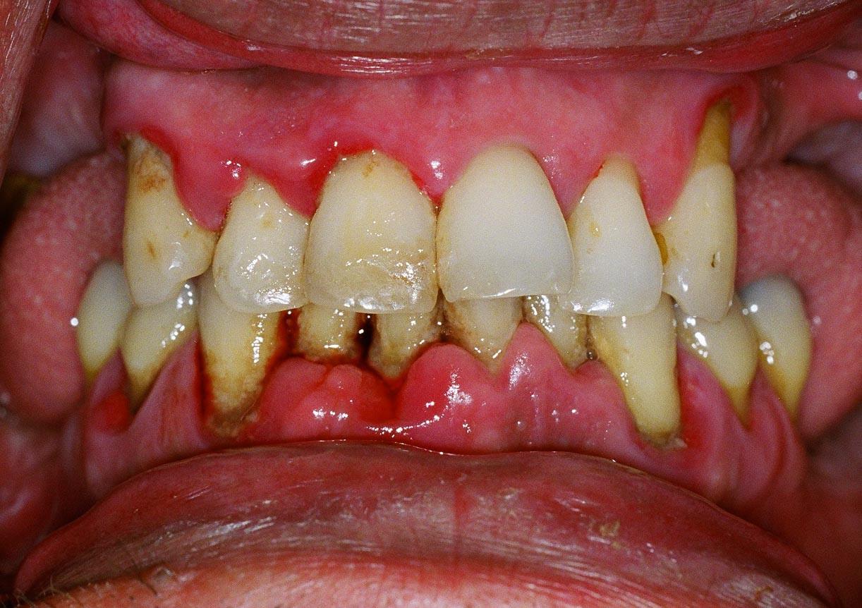 Les soins de Parodontologie