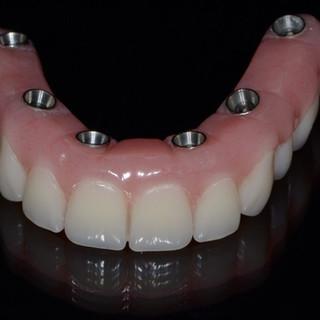 Prothèse implantaire