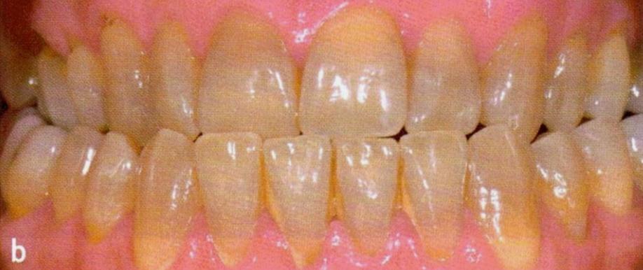 Cabinet; dentaire; saint just; chirurgien-dentiste; implants; facettes; orthodontie; alignement; blanchiment; doux; pas cher; prothèse; marseille; 13ème; 13013; malpassé