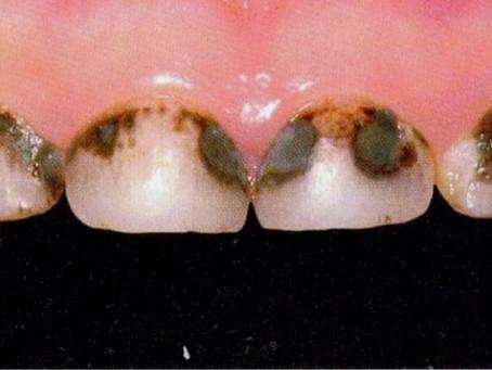 Tout savoir sur les colorations pathologiques de vos dents et comment y remédier