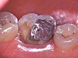La fracture de la dent est aléatoire