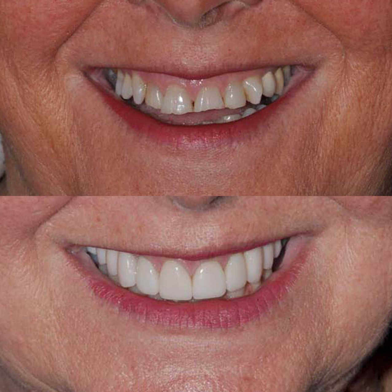 Dentisterie esthétique par facettes céramiques