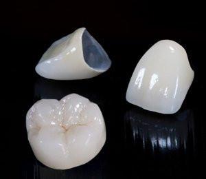 Les techniques de prothèse fixe classiques