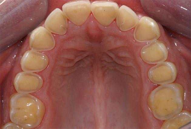 Dr david ATTIA chirurgien dentiste Saint Just Malpassé Marseille 13 13013 implantologie implant prothèse esthétique