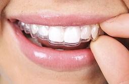 appareil orthodontie enfant marseille 13