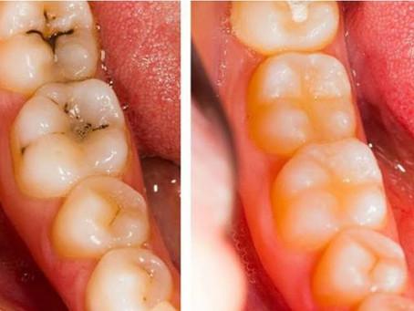 """Mise en place du service d'hygiène, de suivi et de prévention à votre cabinet """"Dentaire Saint Just"""""""