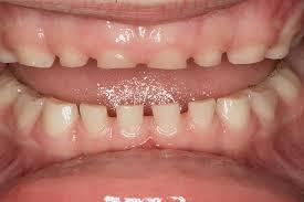 Bruxisme, stress, crispation de machoires, luxation discale, Aix en Provence, Dentalya, centre de santé dentaire, occlusodontie, occlusodontiste, occlusodontologie