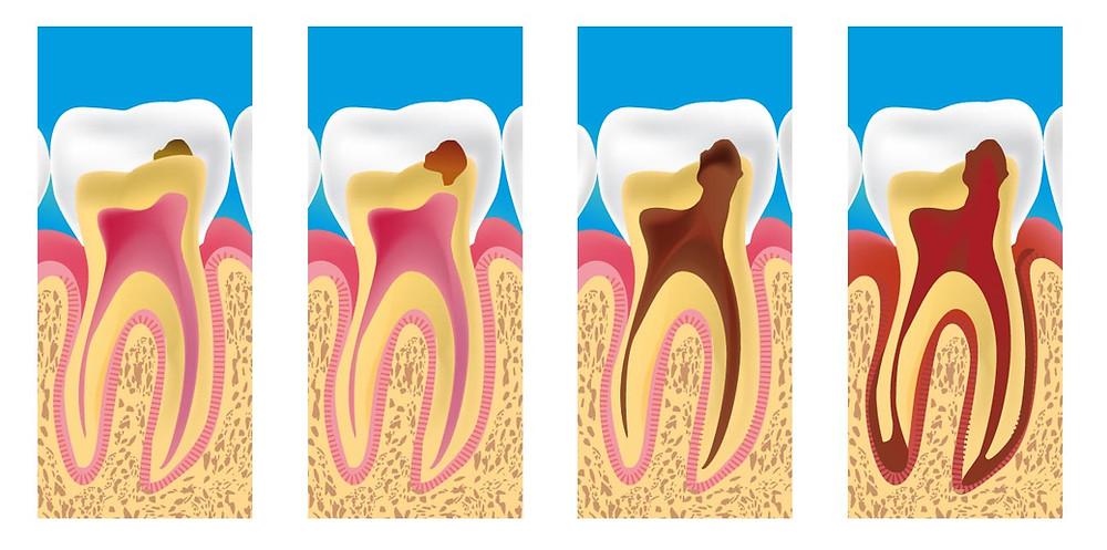 Docteur david ATTIA chirurgien dentiste Marseille Saint Just Malpassé 13 13013 Implantologie prothèse dentaire pédodontie esthétique
