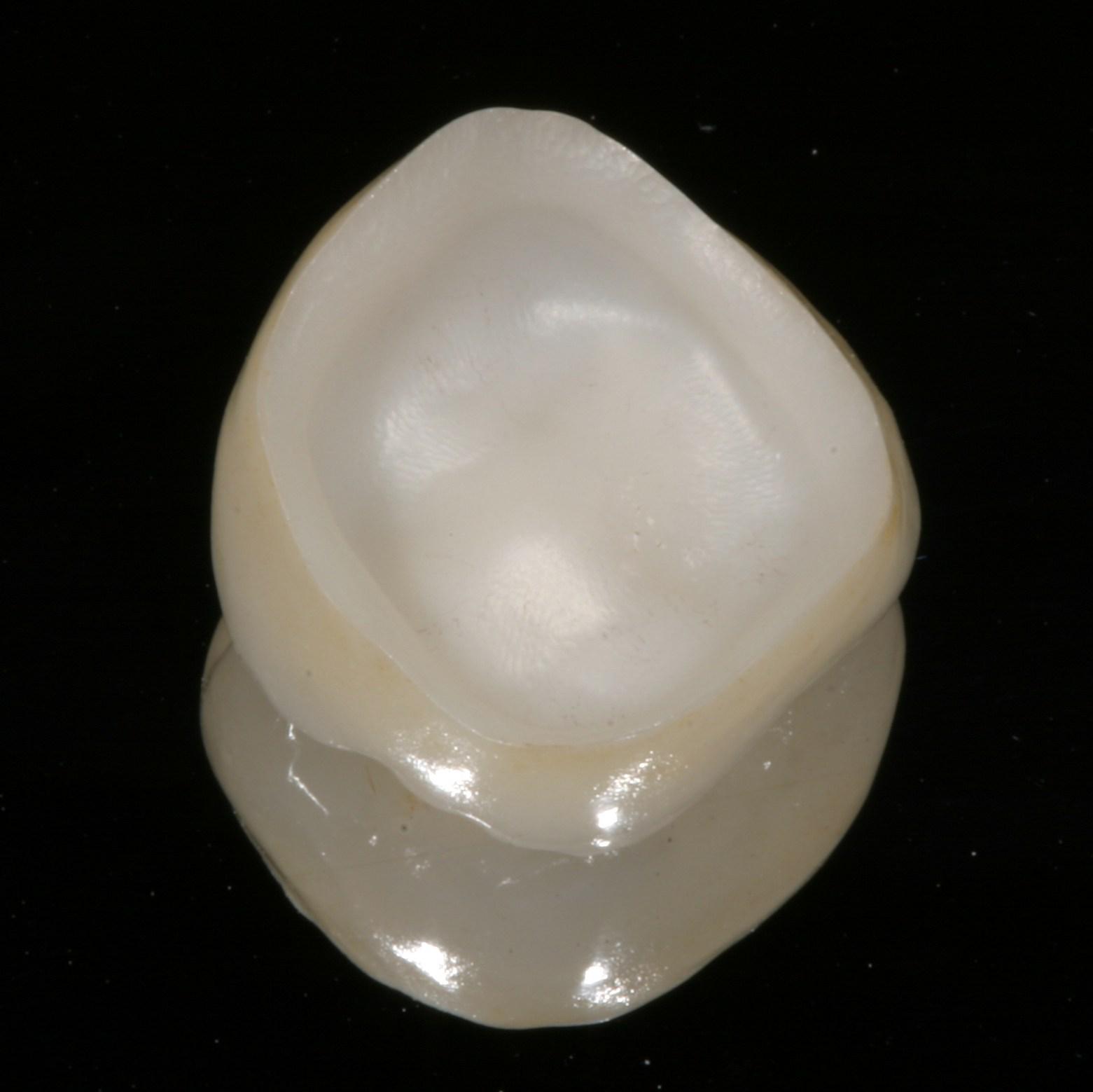 Exemple de noyau céramique pur