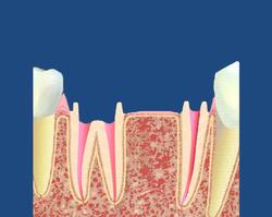 Préparation des dents support