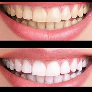 Éclaircissement dentaire professionnel