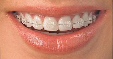 bracelets dentaires marseille 13