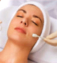 chemical%20peel%20at%20Strengthen%20Your