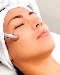 microdermabrasion%20at%20Strengthen%20Yo