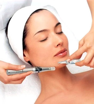 microneedling%20at%20Strengthen%20Yourse