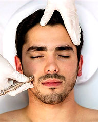 microneedling%20package%20at%20Strengthe