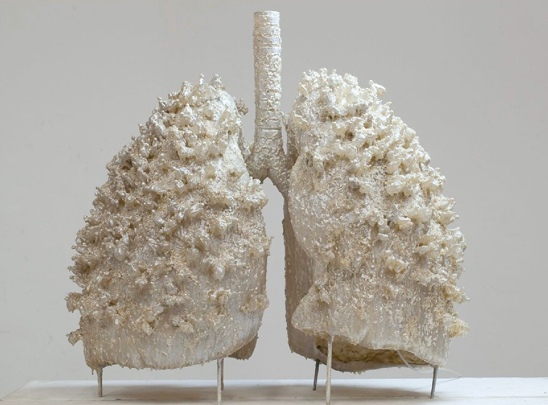 white model of human lungs