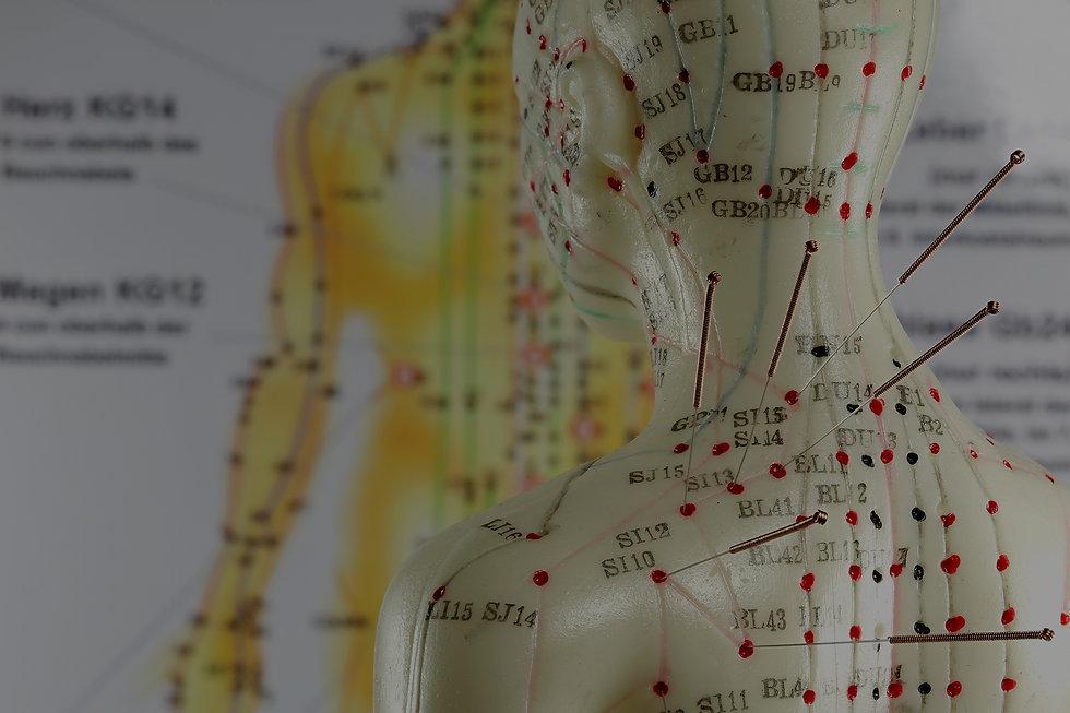 Centre-acupuncture-Geneve.jpg