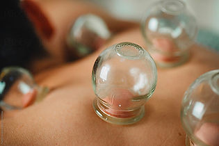 Therapie-ventouses-cupping-elimination-t