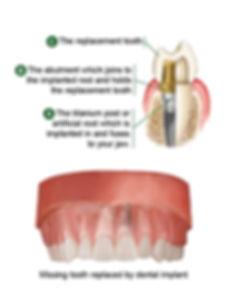 Dental Implant | Breakfast Point