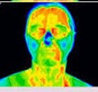 Thermography Screening
