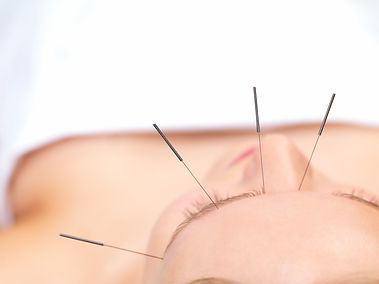 Acupuncture needles above eyes