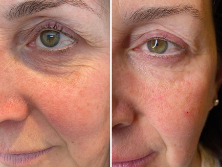 Skin Boosters: It's Never Too Early