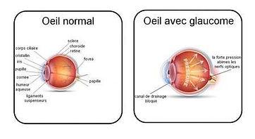 centre d'ophtalmologie boissy saint leger