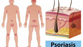Psoriasis et naturopathie : causes, symptômes, solutions naturelles et santé