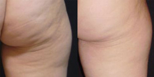 Z Wave Cellulite Before After.jpg