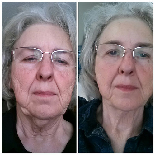 Lipo Melt 12 Sessions (Face/Chin)