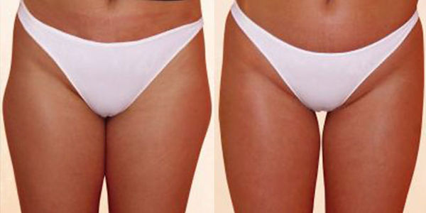 Z WAve Before and After Thighs.jpg