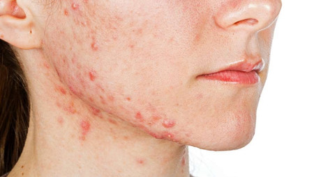 Irish study : Acne stigma linked to lower overall quality of life
