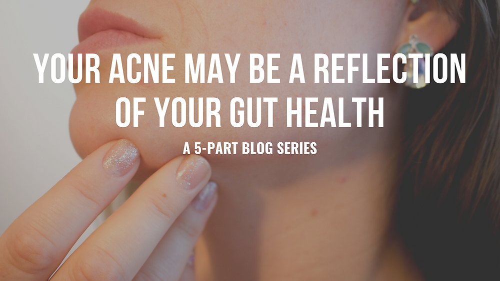 Your Acne May Be a Reflection of Your Gut Health - Small Intestinal Bacterial Overgrowth SIBO
